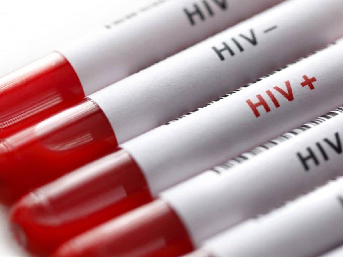 На Полтавщині виявили майже 8 тисяч ВІЛ-позитивних людей